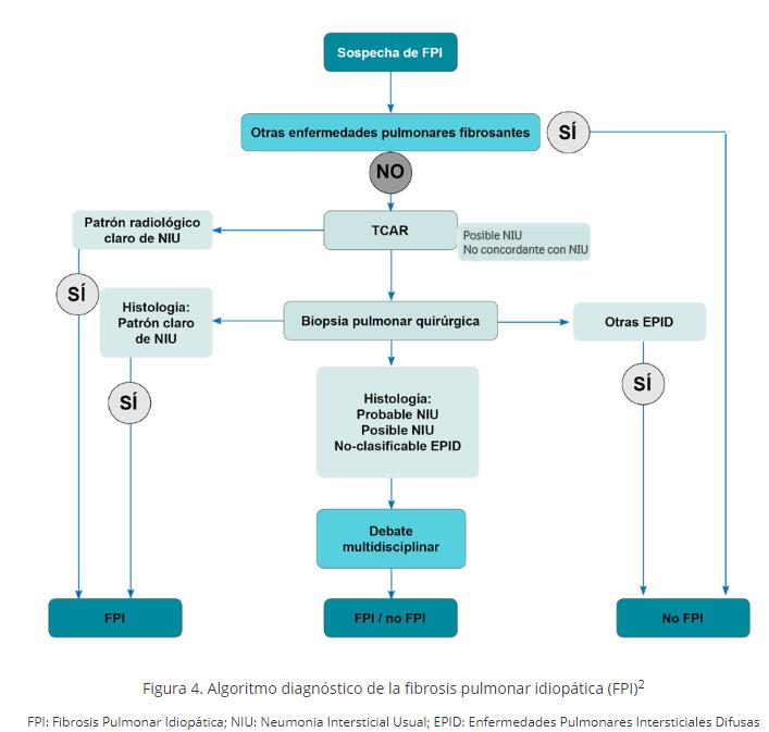 Algoritmo diagnóstico de la fibrosis pulmonar idiopática (FPI)