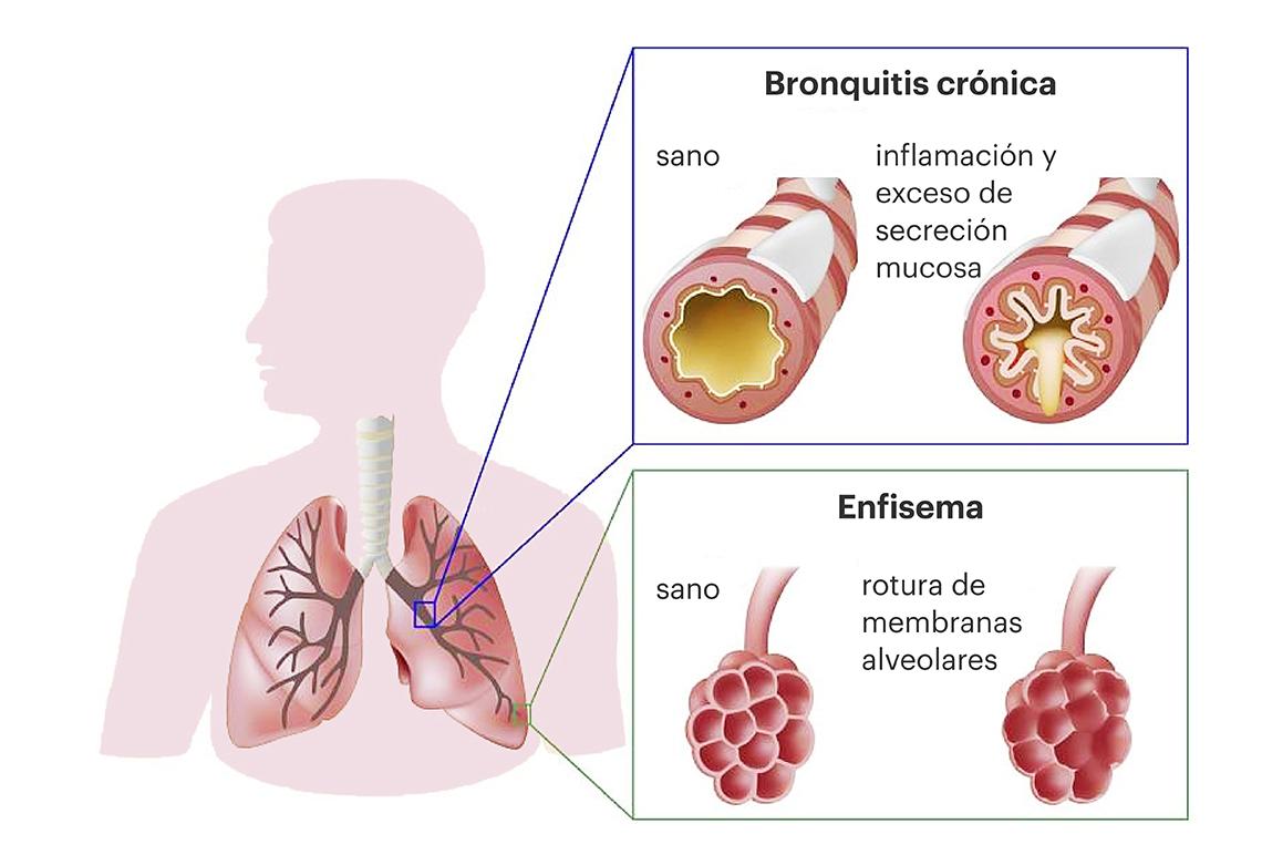 Avances En Respiratorio | EPOC (enfermedad pulmonar obstructiva ...