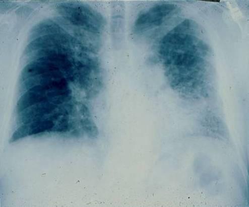 Radiografía simple de un paciente con fibrosis pulmonar idiopática (FPI). Patrón reticular de predominio en las bases.