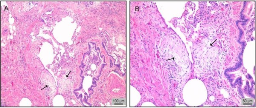 Biopsia pulmonar quirúrgica de un paciente con fibrosis pulmonar idiopática (FPI). A. Patrón histológico de neumonía intersticial usual (NIU): fibrosis, focos de fibroblastos (flechas) y escasas paredes alveolares casi normales (en el centro de la imagen). B. Imagen aumentada de los focos de fibroblastos (flechas). Tinción de hematoxilina-eosina.