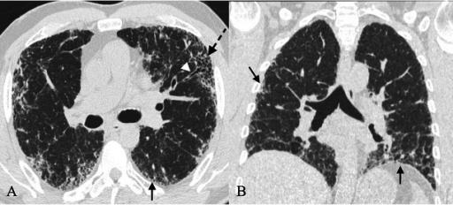 Patrón de neumonía intersticial usual (NIU) en la tomografía computarizada de alta resolución (TACAR). Predominio basal y localización subpleural de las lesiones (flechas negras). Patrón reticular (flechas negras) con bronquiectasias de tracción (punta de flecha blanca). Patrón en panal de abeja (flecha negra discontinua).  Ausencia de signos radiológicos discordantes con la NIU.
